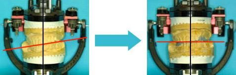 咬合器という装置で上下のあごの位置を再現