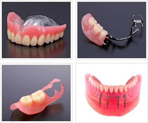 チタン・コバルトクロム ノンクラスプ義歯