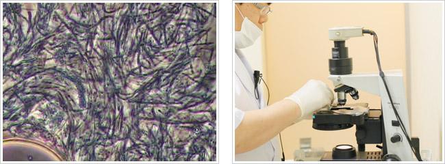 歯周病菌・顕微鏡